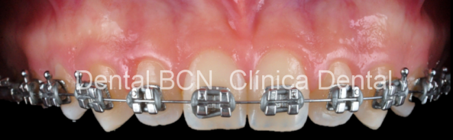 Clinica dental Ortodoncia Barcelona